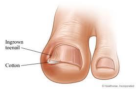 Permanent Ingrown Toenail Removal Surgery
